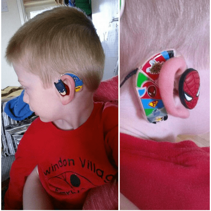 parents make cool hearing aids