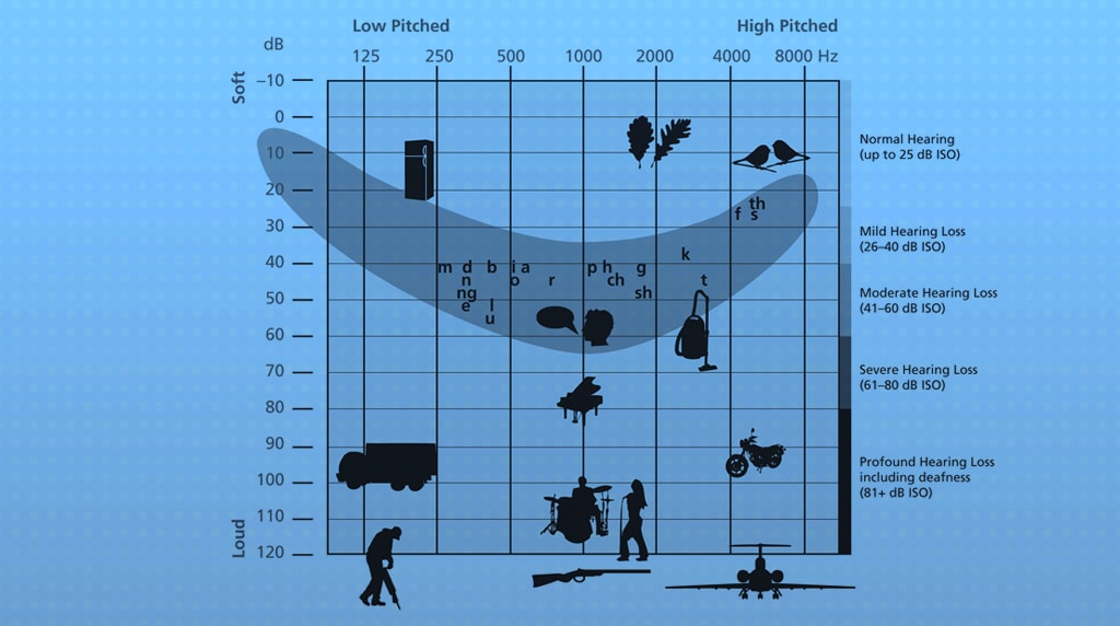 What an audiogram says about your hearing loss.
